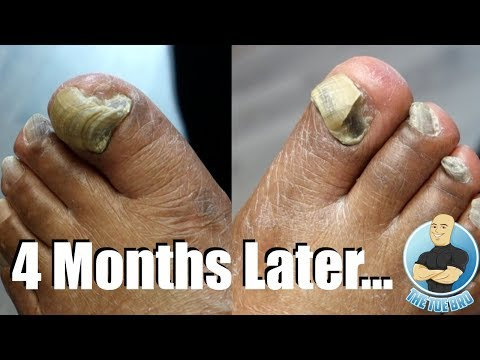 EXTREMELY THICK TOENAILS 4 MONTHS LATER (DID THEY GROW?!)