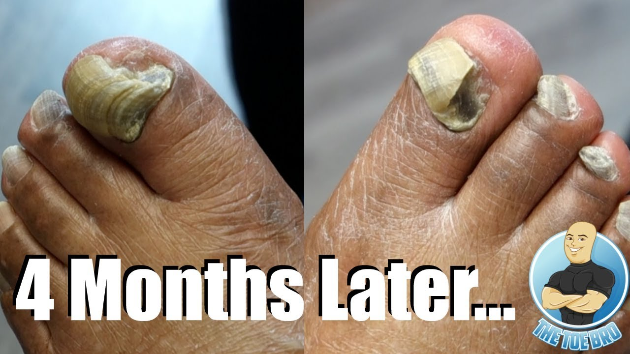 EXTREMELY THICK TOENAILS 4 MONTHS LATER (DID THEY GROW?!) - YouTube