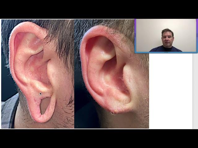 Dr. John Burroughs Ear Gauge Repair Before & After
