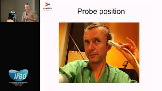 Transcranial Doppler 2017 – Willem Stockman