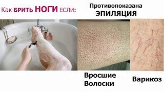 Как брить ноги без раздражения при варикозе Вросшие волосы