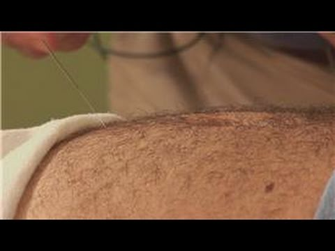 Acupuncture Treatments : Acupuncture for Erectile Dysfunction Travel Video