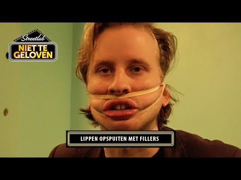 STREETLAB: Lippen opspuiten met fillers!