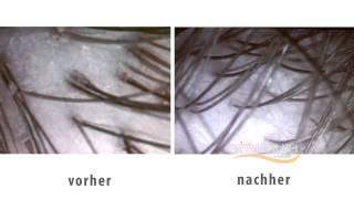 탈모예방브러쉬,두피관리헤어브러쉬/머리가 잘 빗겨지는브러…