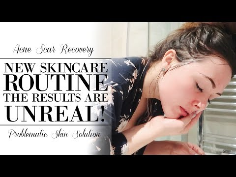 MY ACNE SCARS ARE DISAPPEARING! | SKIN CARE ROUTINE FOR ACNE PRONE SKIN