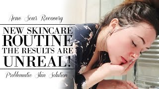 Video MY ACNE SCARS ARE DISAPPEARING! | SKIN CARE ROUTINE FOR ACNE PRONE SKIN download MP3, 3GP, MP4, WEBM, AVI, FLV November 2017