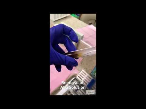 Dr. Patrick Yoshikane - CGF Membrane Binding with Chromic Suture - Orange, CA