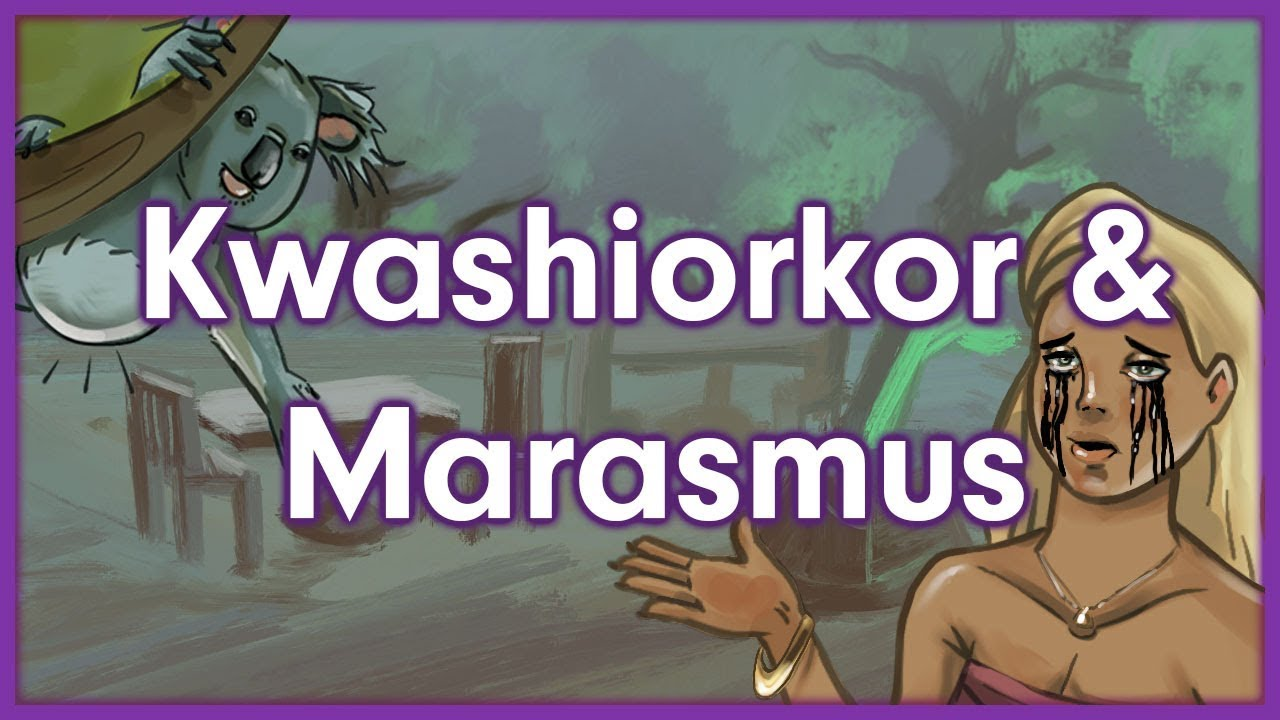 Kwashiorkor Vs Marasmus Nutrition Mnemonic Youtube