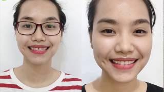 Răng thưa, răng dị dạng sửa thế nào cho đẹp?