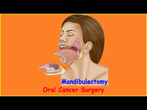 Oral Cancer Surgery Commando with Marginal Mandibulectomy and Neck Dissection