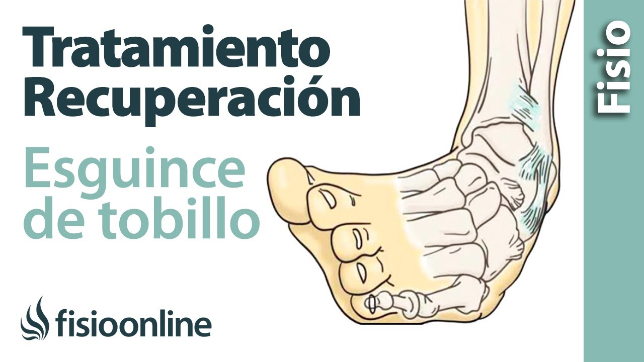 Tratamiento y recuperación de un esguince de tobillo - YouTube