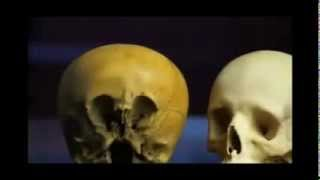Ancient Aliens extract: the Starchild Skull