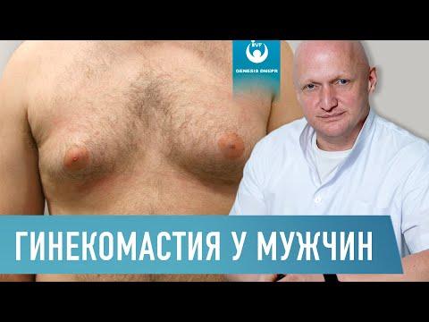 Что такое гинекомастия у мужчин. Симптомы, последствия, методы лечения | Хирург Щевцов
