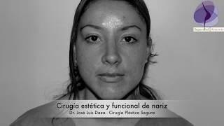 Rinoplastía Estética Funcional  Dr. Jose L Daza   México