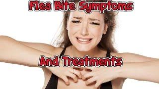 Flea Bite Symptoms