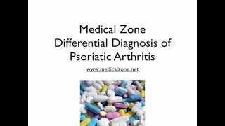 Medical Zone   Differential Diagnosis of Psoriatic Arthritis