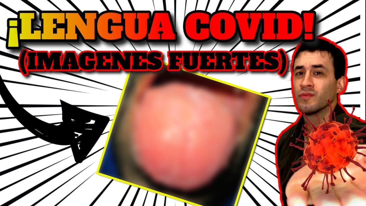 """PANDEMIA Y SALUD ORAL: """"LENGUA COVID""""  ANALISIS, RESUMEN, EVIDENCIA Y UN CASO REAL!"""