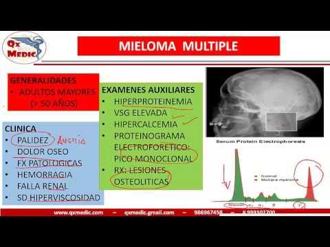 Mieloma multiple pdf