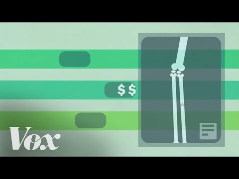 How single-payer health care works, in 2 minutes