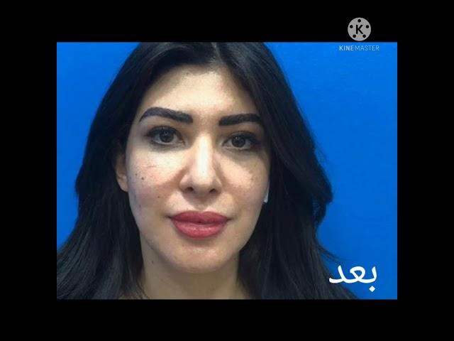 الفنانة السعودية مانا المجد قبل وبعد التجميل في مركز دار الجمال بالقاهرة