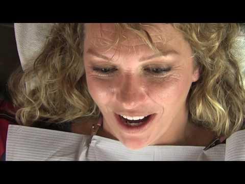 Dr. Sun Places Dental Veneers on Patient in Los Angeles CA