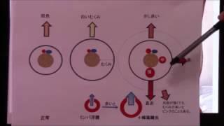 リンパ浮腫【4】増悪の誘因と蜂窩織炎とは