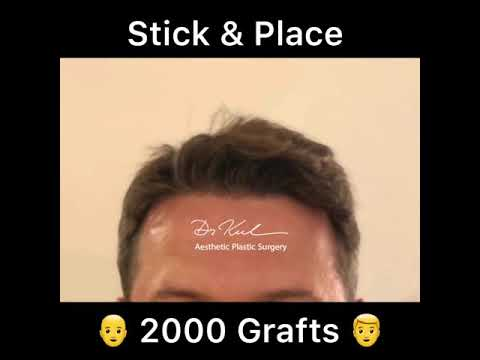 Stick & Place 2000 Grafts 👨🦲👉👨