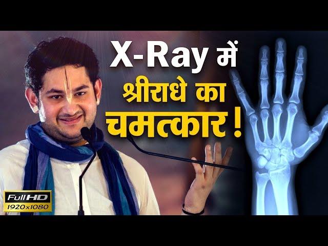 Miracle of Shri Radhey in x-ray || ???? ?? ??? ???????? ?? ??????? || Sri Pundrik Goswami Ji Maharaj