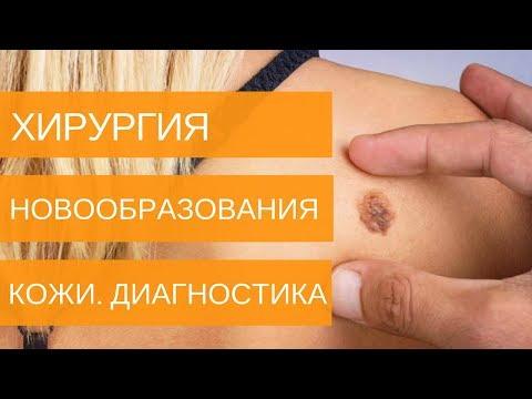 Меланома кожи. О заболевании - фото 1