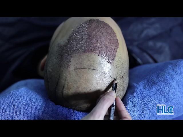 Пересадка волос в Турции - #2 Презентация клиники HLC в Анкаре