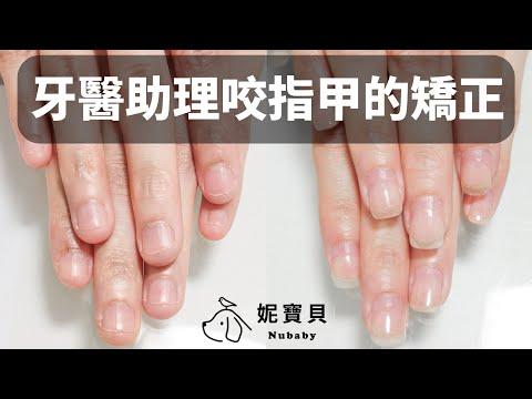 指甲問題-牙醫助理摳咬指甲矯正,指甲超短、指肉外露、甲床不完整的35週指甲矯正案例