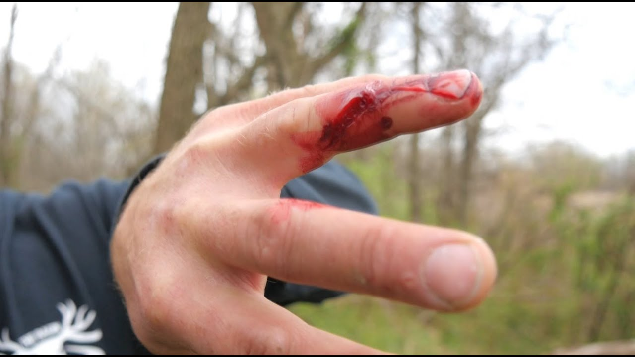 Image result for crossbow thumb injuries