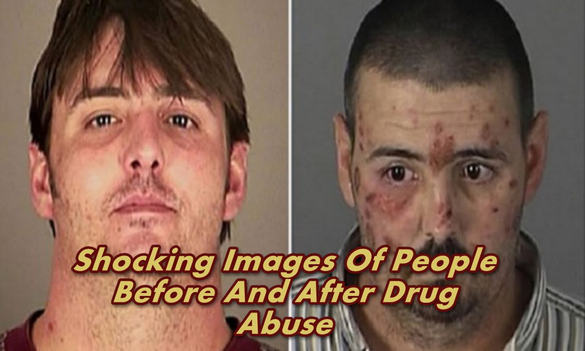 Shocking Images Of People Before And After Drug Abuse ...