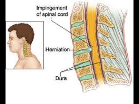 Cervical disc excision and fusion anterior approach الدكتور