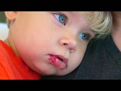 TODDLER GETS STITCHES!