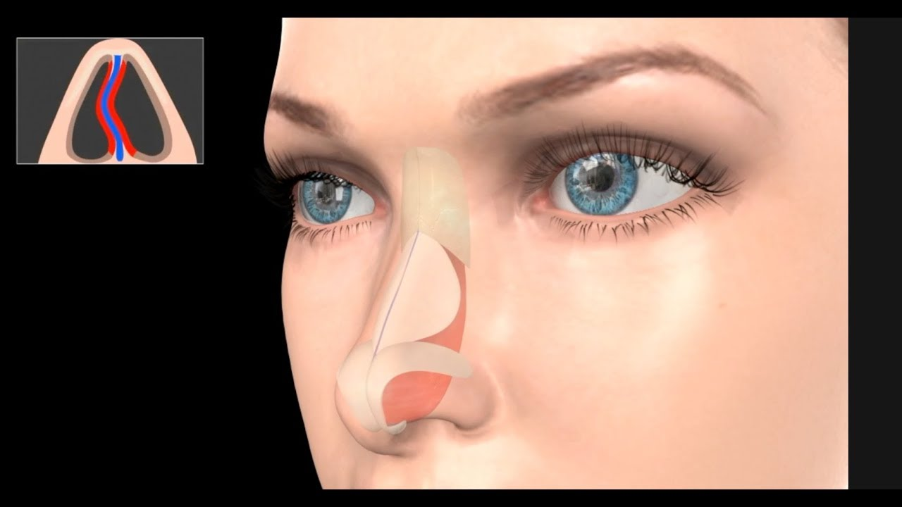 deviated septum surgery cost - 1280×720