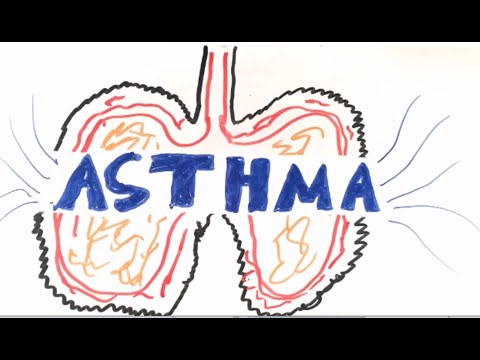 What is Asthma-Asthma pathophysiology
