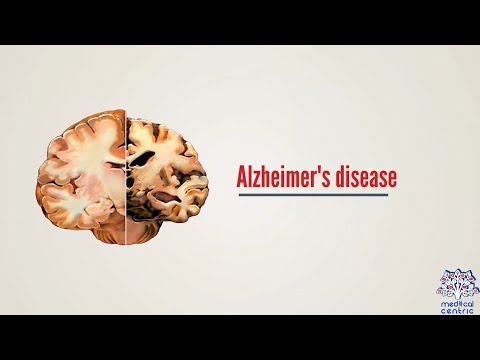 What's Developing in Alzheimer's Treatment