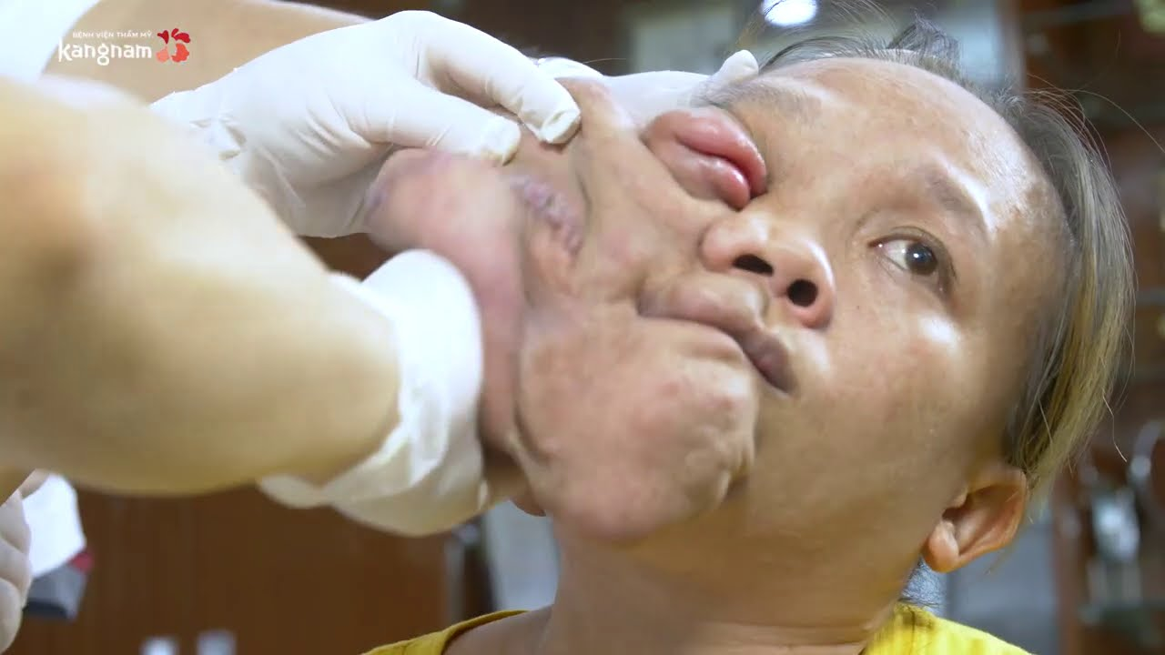 """Toàn cảnh 2 tiếng hội chẩn phương án phẫu thuật cho Út Hương """"nửa mặt"""""""