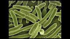 Listeriose Listerien Infektion