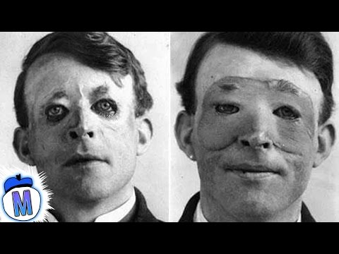 Thumbnail: 9 Craziest Things Doctors Have Ever Done