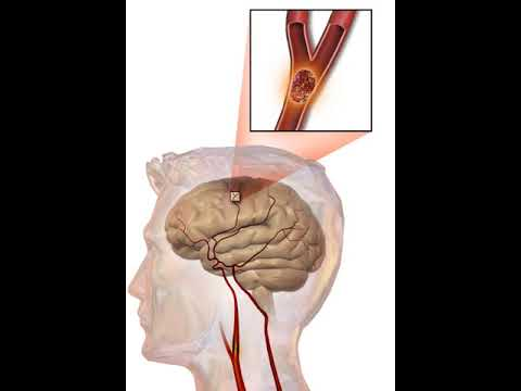 Stroke | Wikipedia audio article