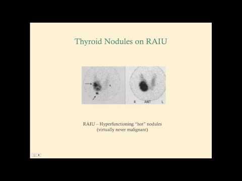 Thyroid Cancer - CRASH! Medical Review Series