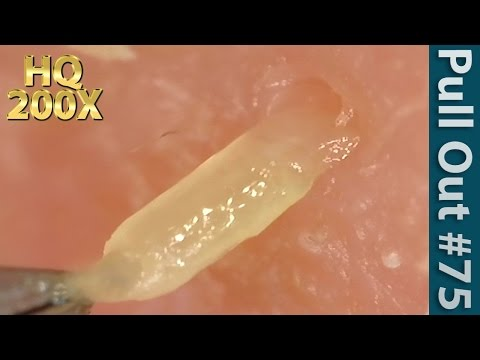 #75 Pull Out Blackheads Close up 200X - Blackheads Removal