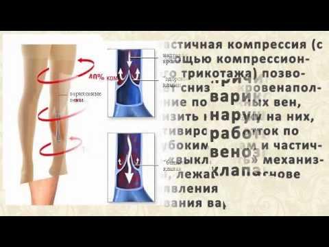 Смотреть Лечение Варикоза Мазью Вишневского - Лечение Варикоза ...