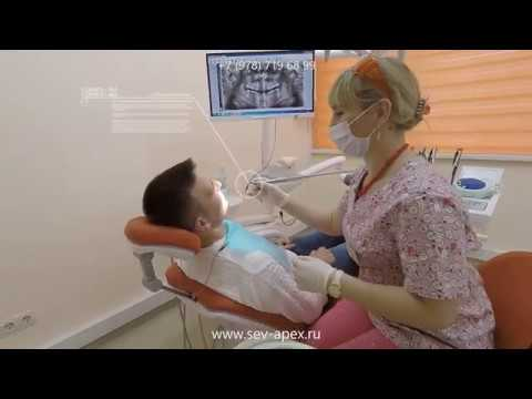 Удаление зуба мудрости на нижней и верхней челюсти, цена