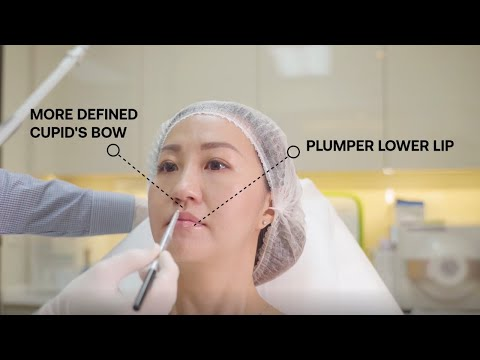 Alternative to Lip Fillers - Fotona LipLase Laser Lip Plumping