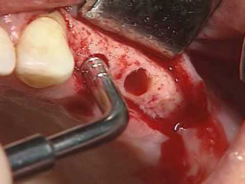 Video of  properly placing two Dental Implants on a second patient--very informative