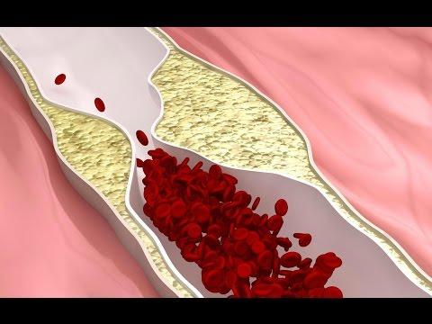 Повышенный уровень холестерина. Причины