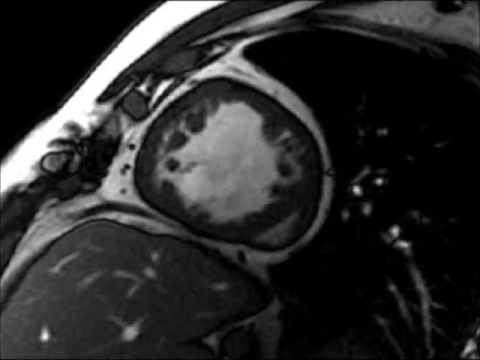 Cardiac MRI: Left ventricle